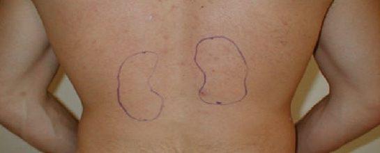 анатомия на бъбрек, къде се намират нашите бъбреци (снимки)