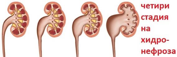 хидронефроза, бъбречни бобести, симптоми и лечение