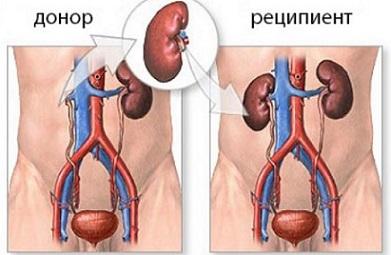 Трансплантация на бъбрек, бъбречни бобести, присаждане