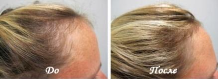 Коприва, лечение с коприва, коприва за отслабване, коприва за коса